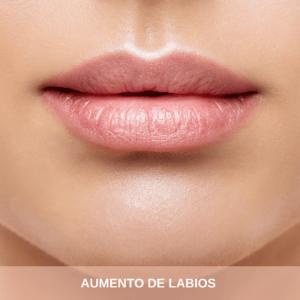aumento de labios en Bilbao